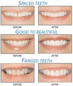 Saunders Family Dental